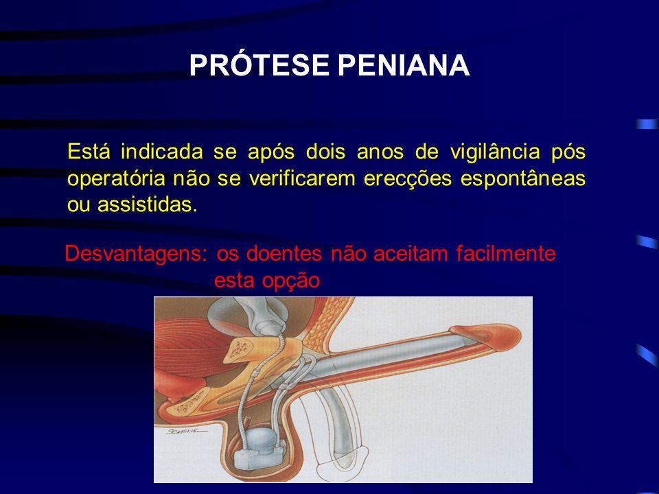 PRÓTESE PENIANA Está indicada se após dois anos de vigilância pós operatória não se verificarem erecções espontâneas ou assistidas.