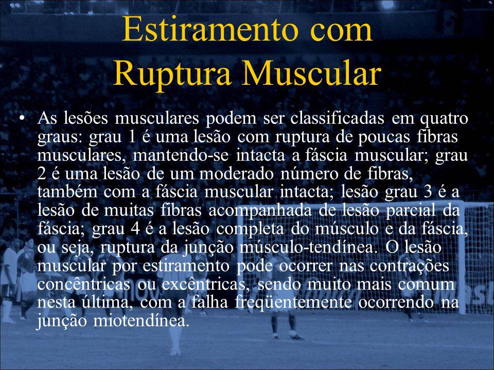 Estiramento com Ruptura Muscular