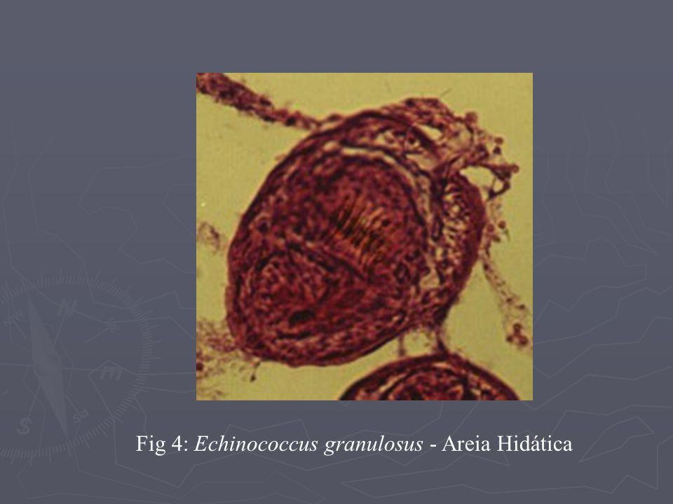 Fig 4: Echinococcus granulosus - Areia Hidática