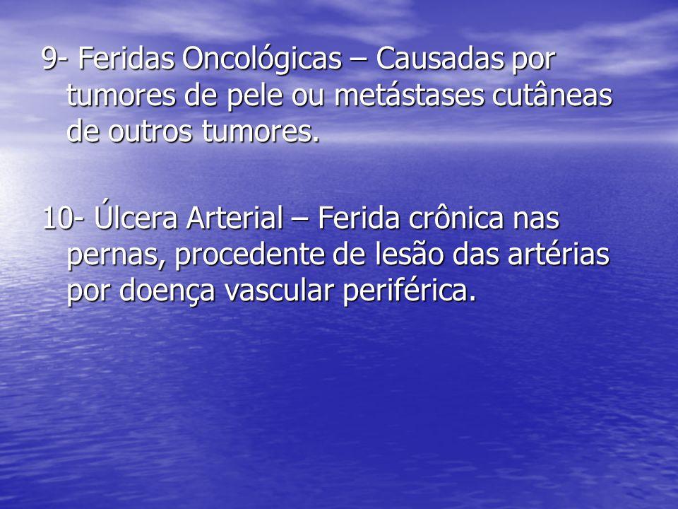 9- Feridas Oncológicas – Causadas por tumores de pele ou metástases cutâneas de outros tumores.