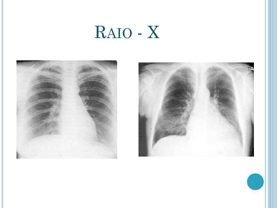 Raio - X