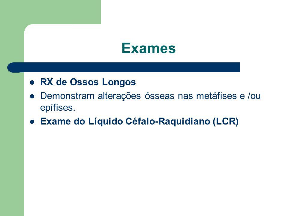 Exames RX de Ossos Longos