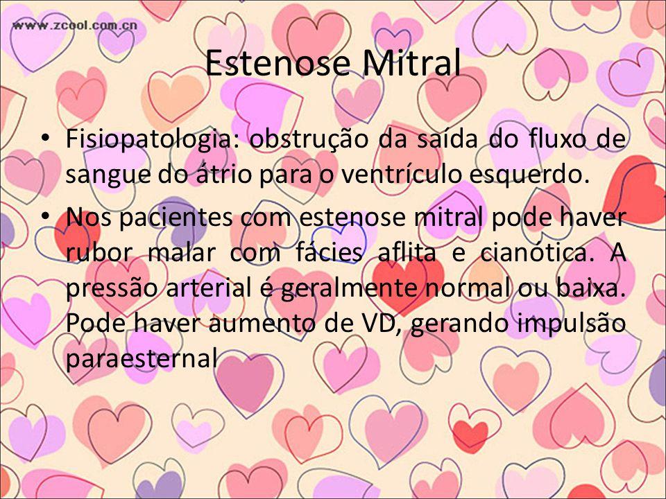 Estenose Mitral Fisiopatologia: obstrução da saída do fluxo de sangue do átrio para o ventrículo esquerdo.