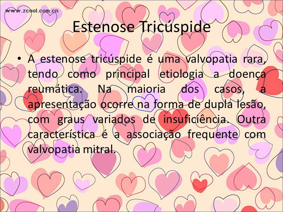 Estenose Tricúspide