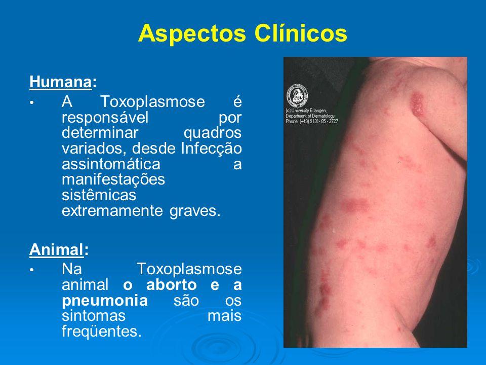Aspectos Clínicos Humana: