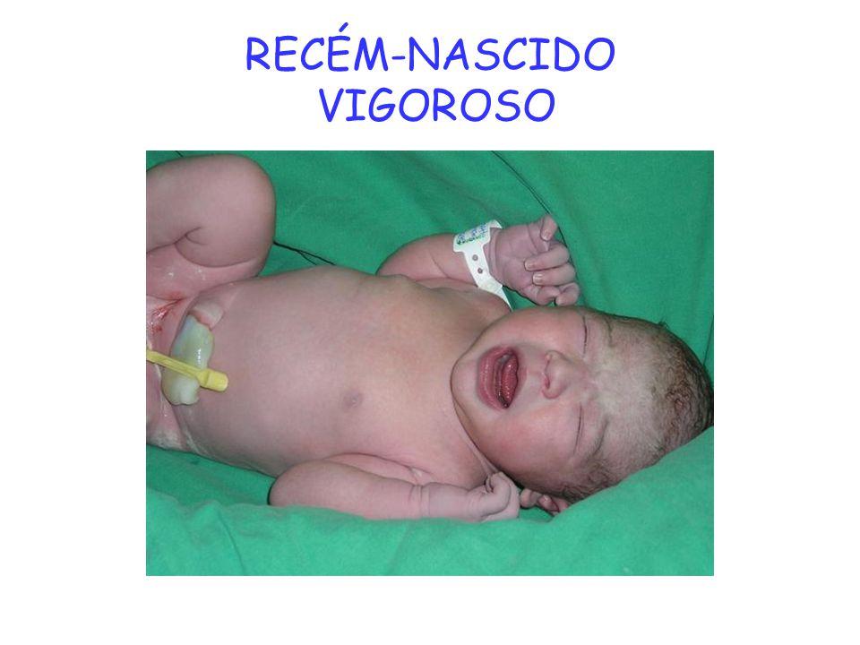 RECÉM-NASCIDO VIGOROSO