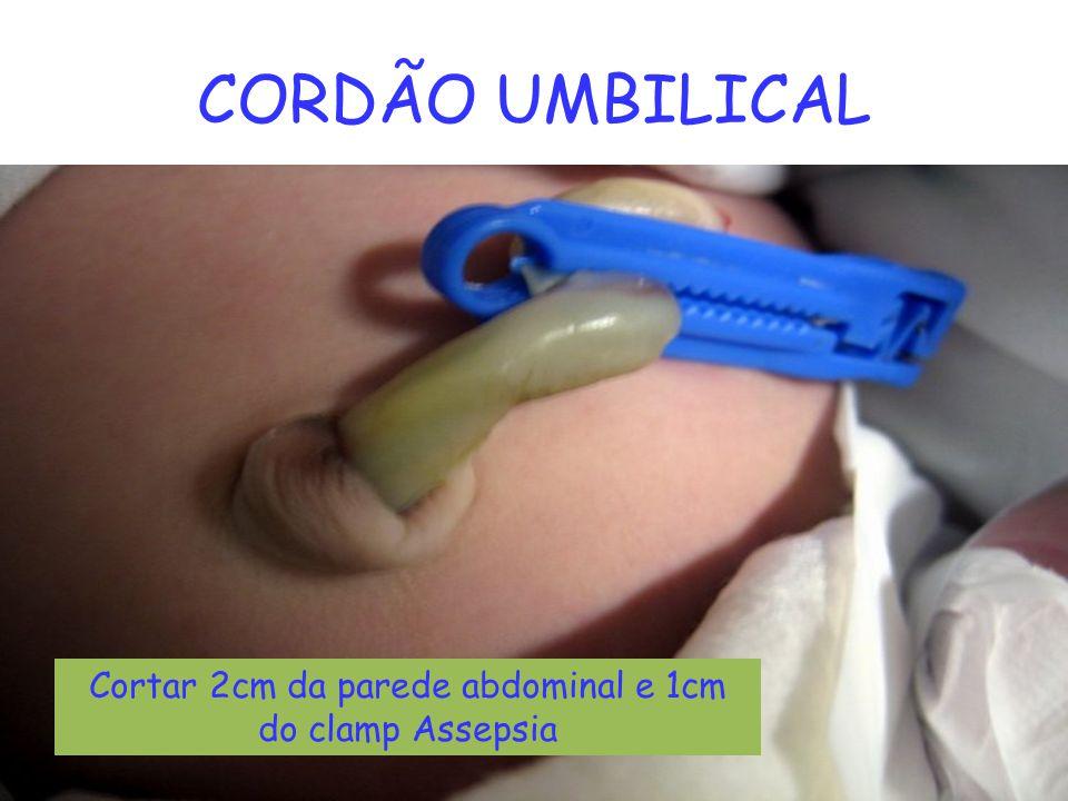 Cortar 2cm da parede abdominal e 1cm do clamp Assepsia