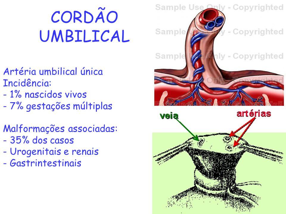 CORDÃO UMBILICAL Artéria umbilical única