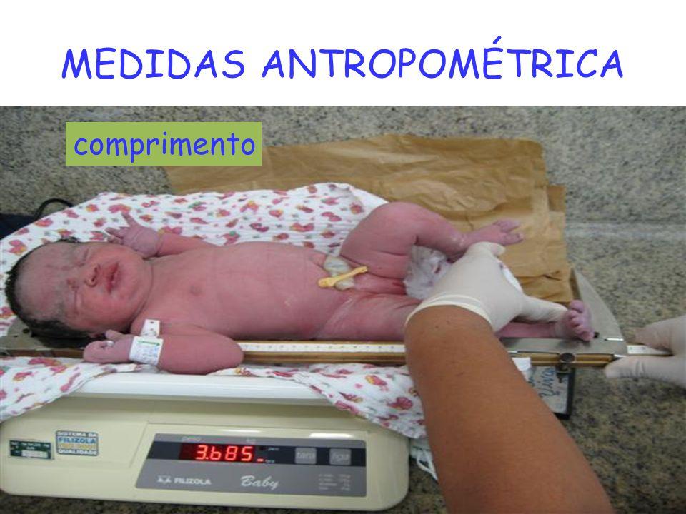 MEDIDAS ANTROPOMÉTRICA