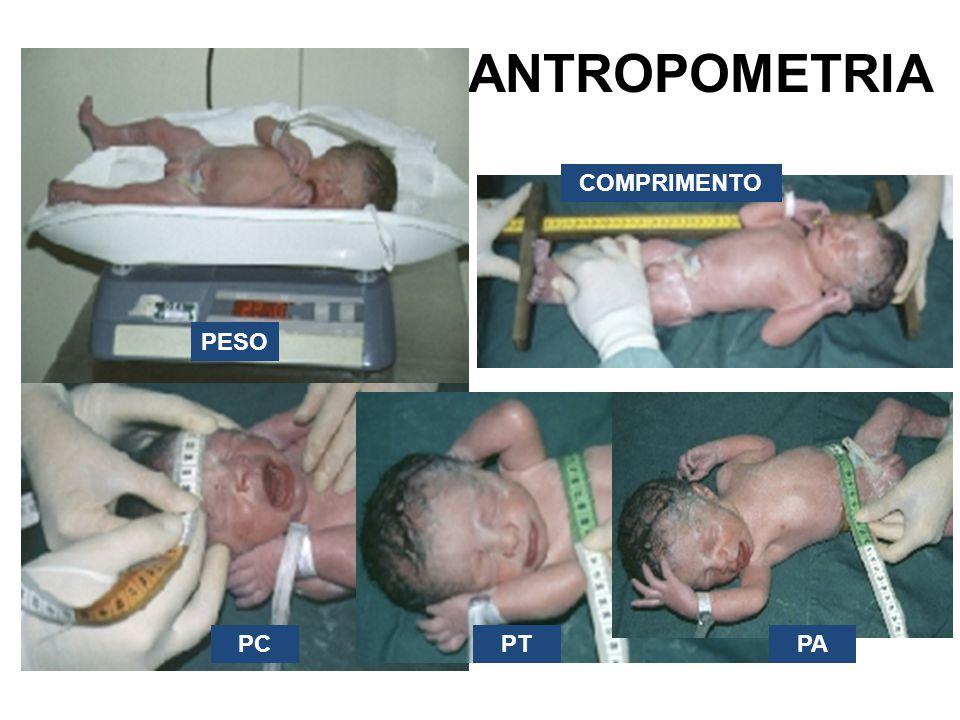 ANTROPOMETRIA COMPRIMENTO PESO PC PT PA