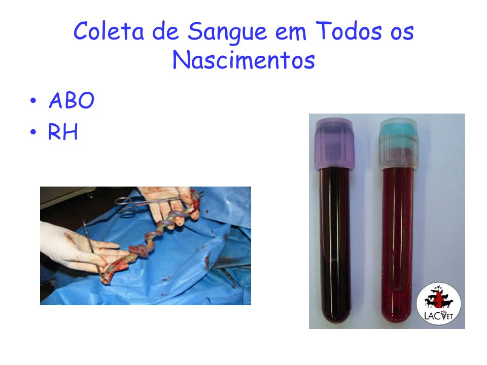 Coleta de Sangue em Todos os Nascimentos