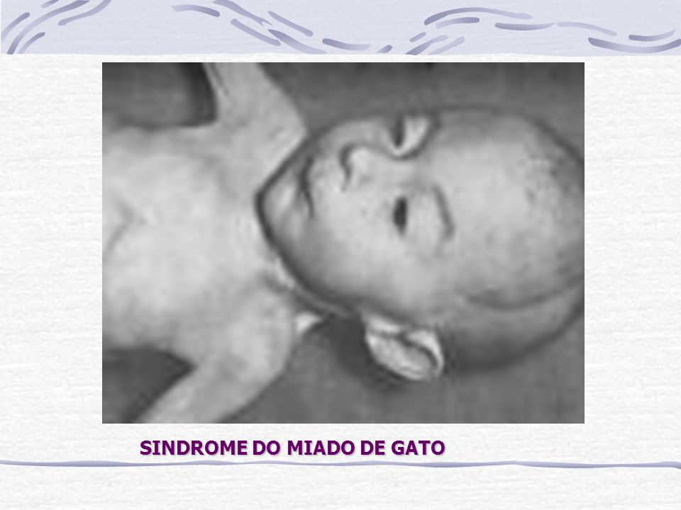 SINDROME DO MIADO DE GATO