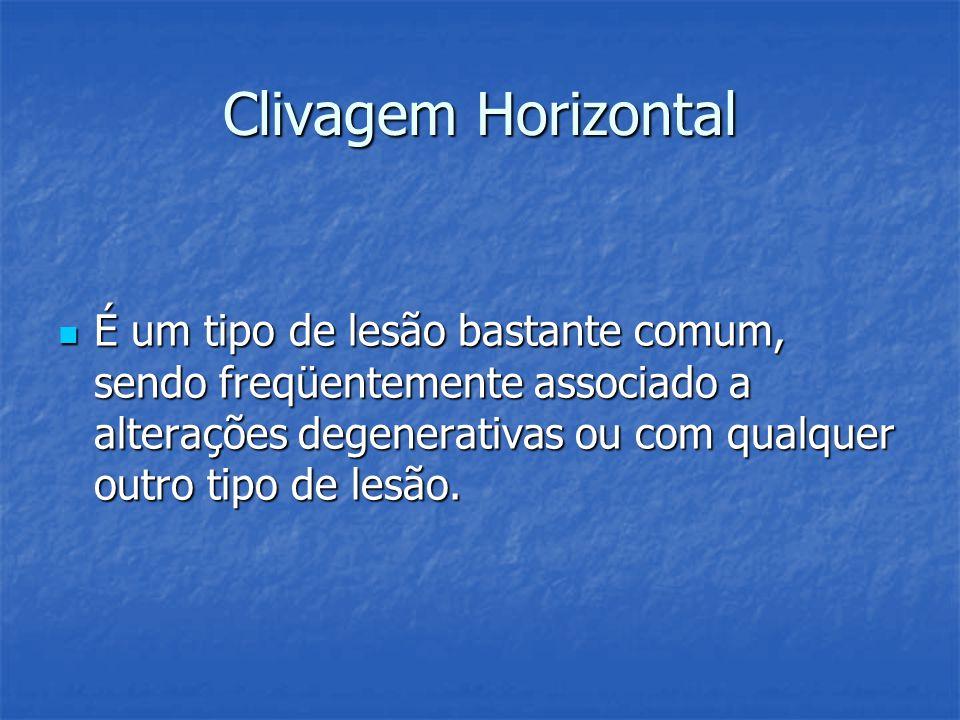 Clivagem Horizontal É um tipo de lesão bastante comum, sendo freqüentemente associado a alterações degenerativas ou com qualquer outro tipo de lesão.
