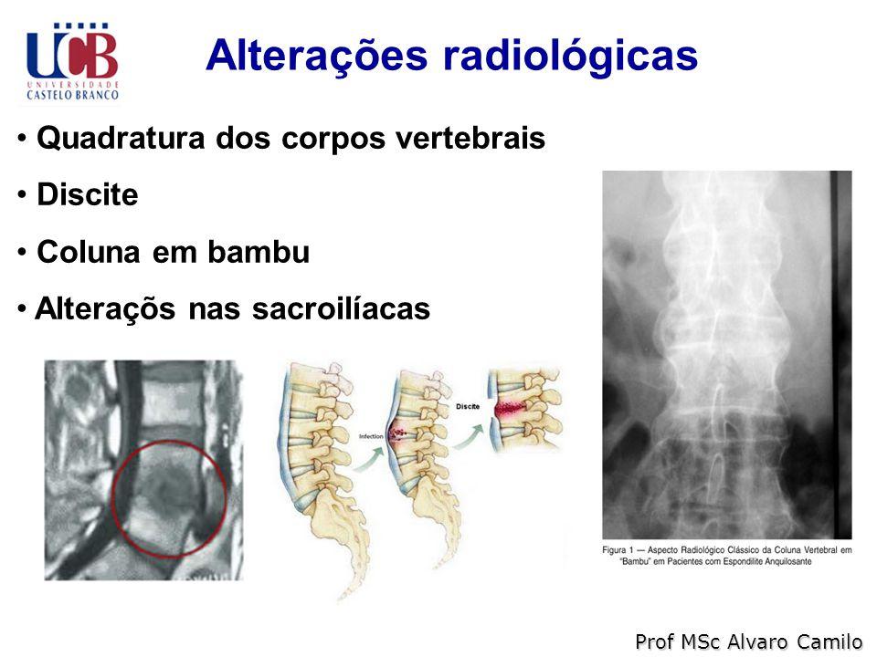 Alterações radiológicas