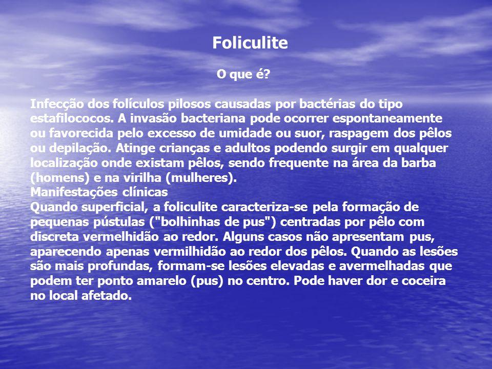 Foliculite O que é