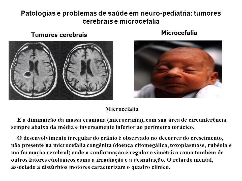 Patologias e problemas de saúde em neuro-pediatria: tumores cerebrais e microcefalia
