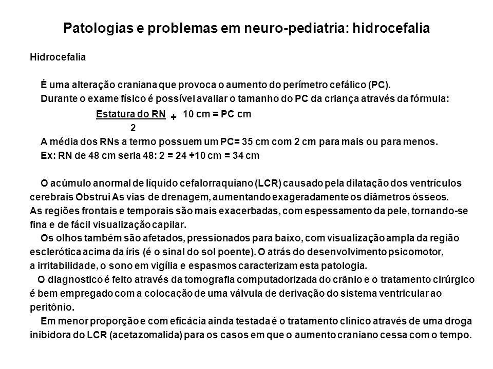 Patologias e problemas em neuro-pediatria: hidrocefalia