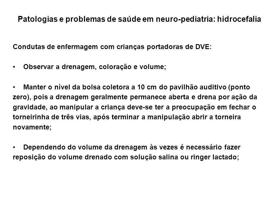 Patologias e problemas de saúde em neuro-pediatria: hidrocefalia