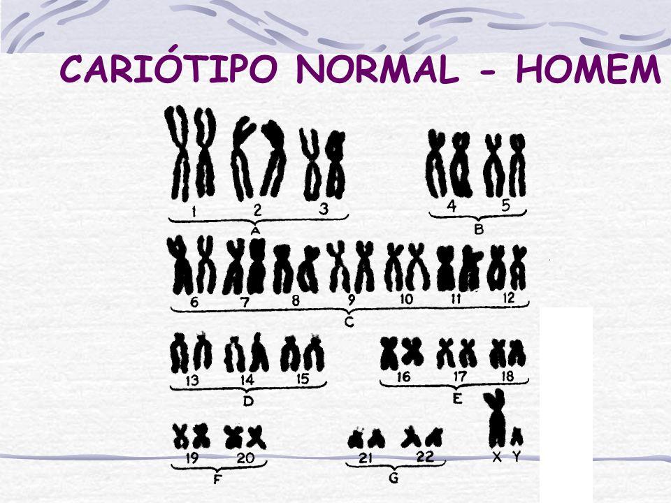 CARIÓTIPO NORMAL - HOMEM