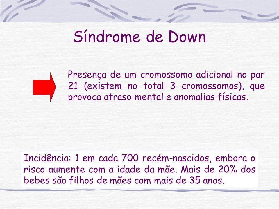 Presença de um cromossomo adicional no par 21 (existem no total 3 cromossomos), que provoca atraso mental e anomalias físicas.