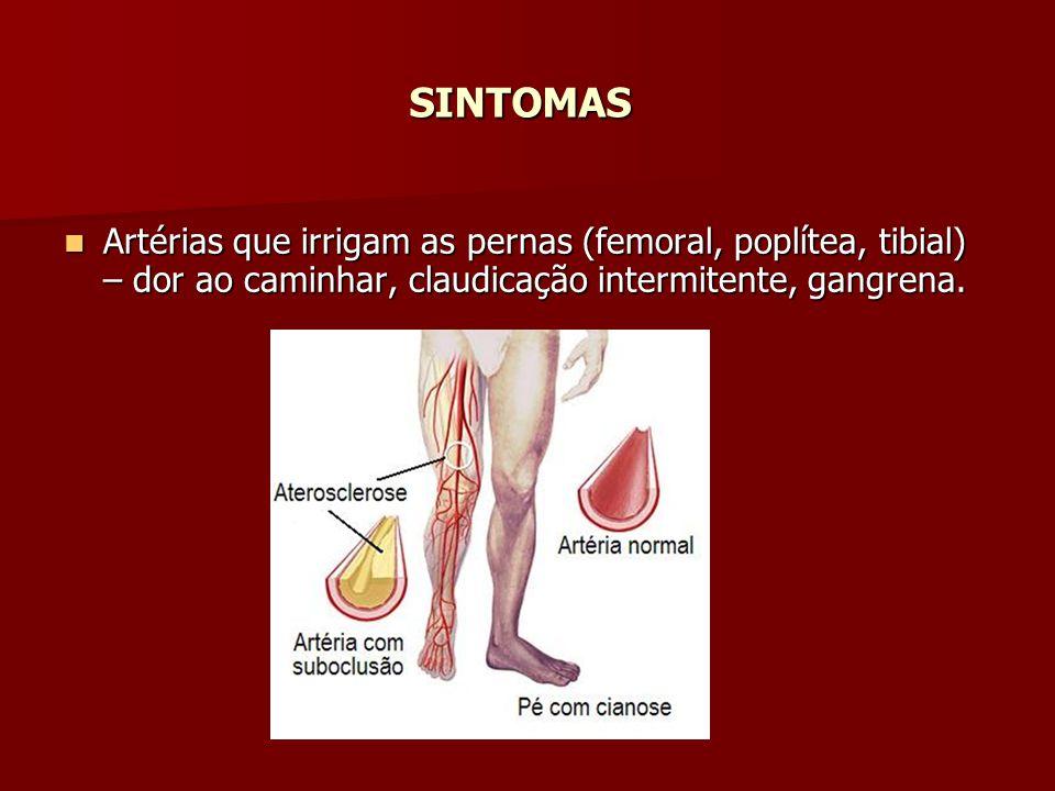 SINTOMAS Artérias que irrigam as pernas (femoral, poplítea, tibial) – dor ao caminhar, claudicação intermitente, gangrena.