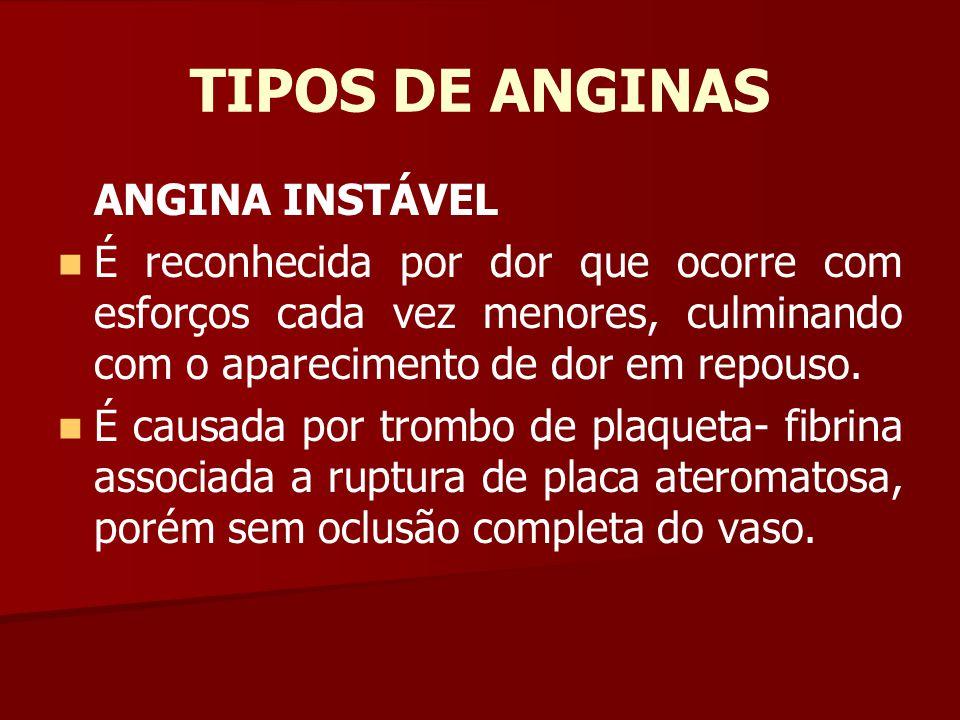TIPOS DE ANGINAS ANGINA INSTÁVEL