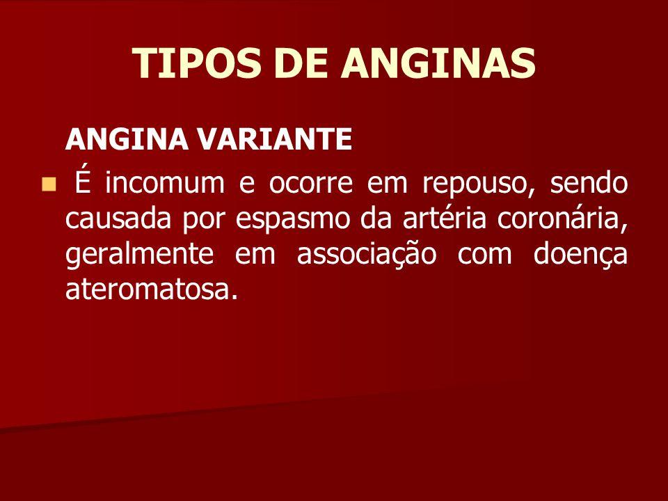 TIPOS DE ANGINAS ANGINA VARIANTE