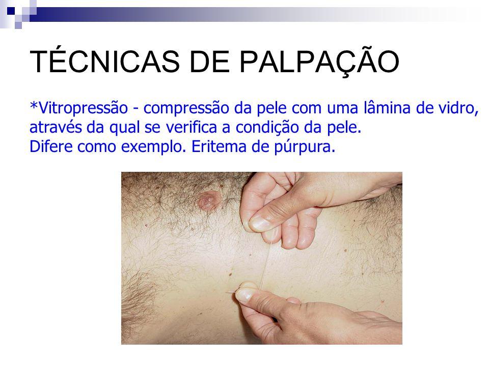 TÉCNICAS DE PALPAÇÃO Vitropressão - compressão da pele com uma lâmina de vidro, através da qual se verifica a condição da pele.