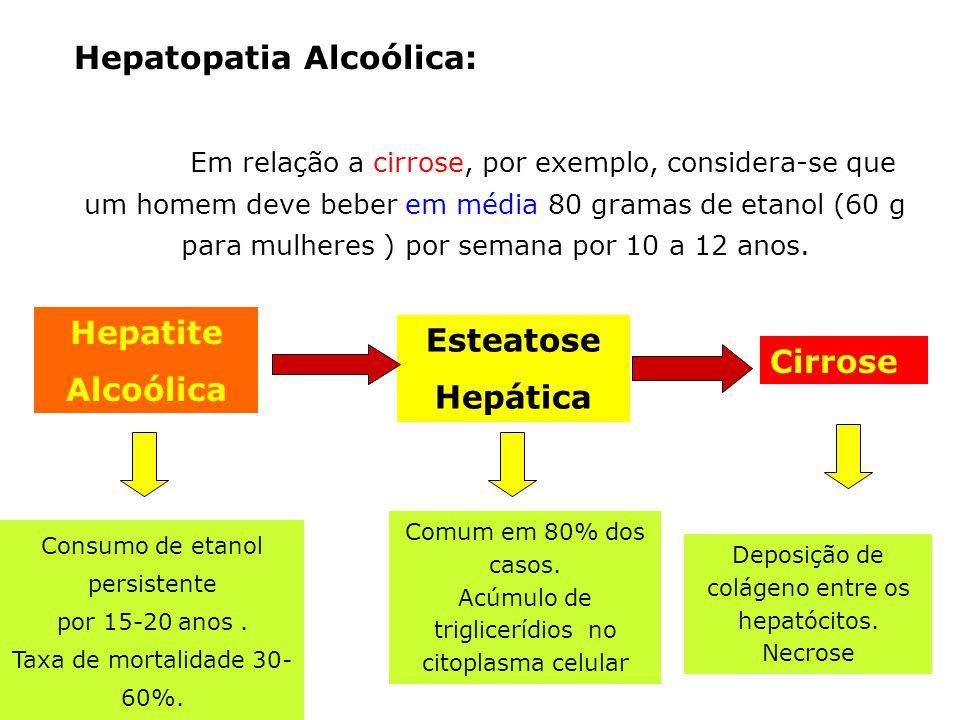 Hepatite Alcoólica Esteatose Hepática