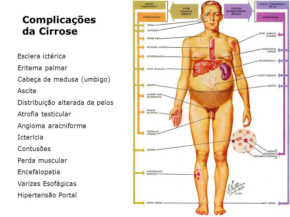 Complicações da Cirrose