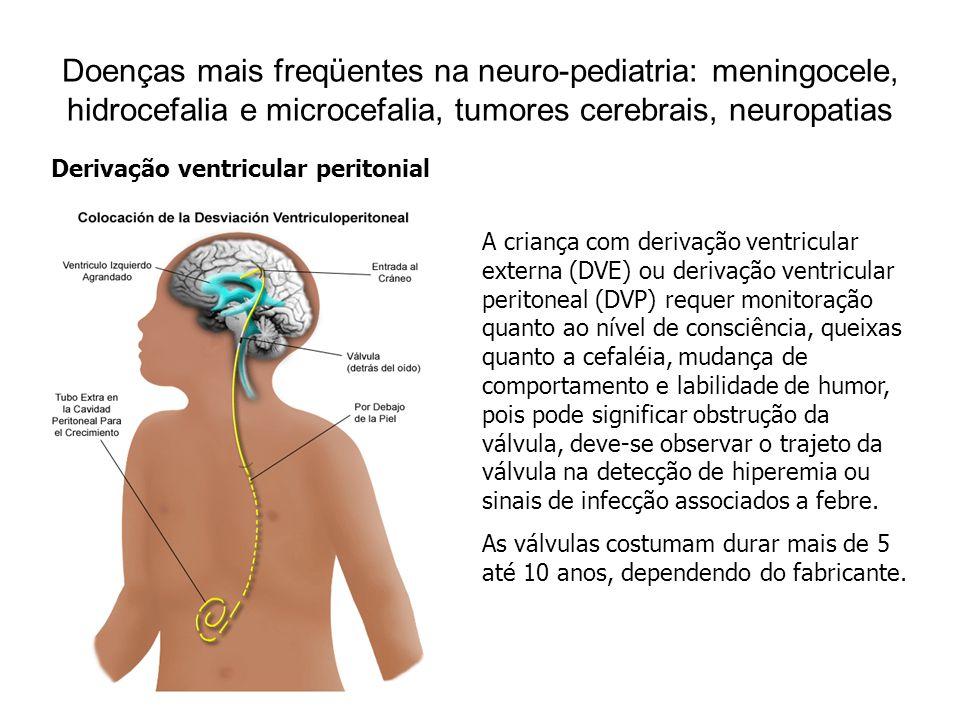Doenças mais freqüentes na neuro-pediatria: meningocele, hidrocefalia e microcefalia, tumores cerebrais, neuropatias