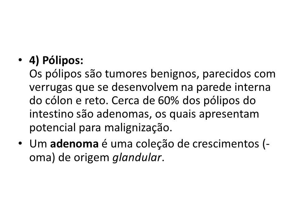 4) Pólipos: Os pólipos são tumores benignos, parecidos com verrugas que se desenvolvem na parede interna do cólon e reto. Cerca de 60% dos pólipos do intestino são adenomas, os quais apresentam potencial para malignização.