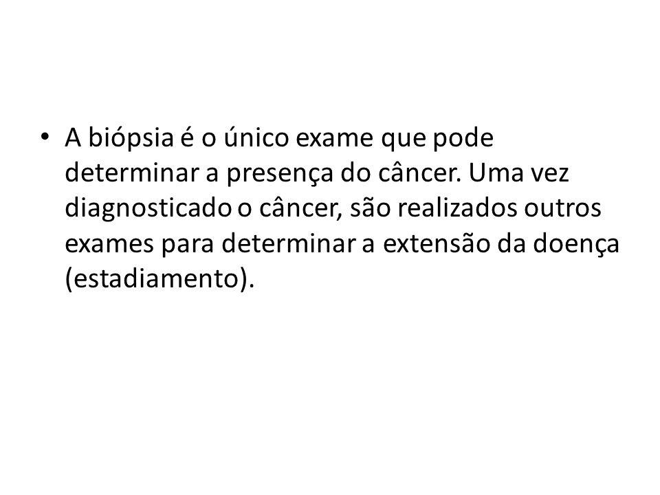 A biópsia é o único exame que pode determinar a presença do câncer