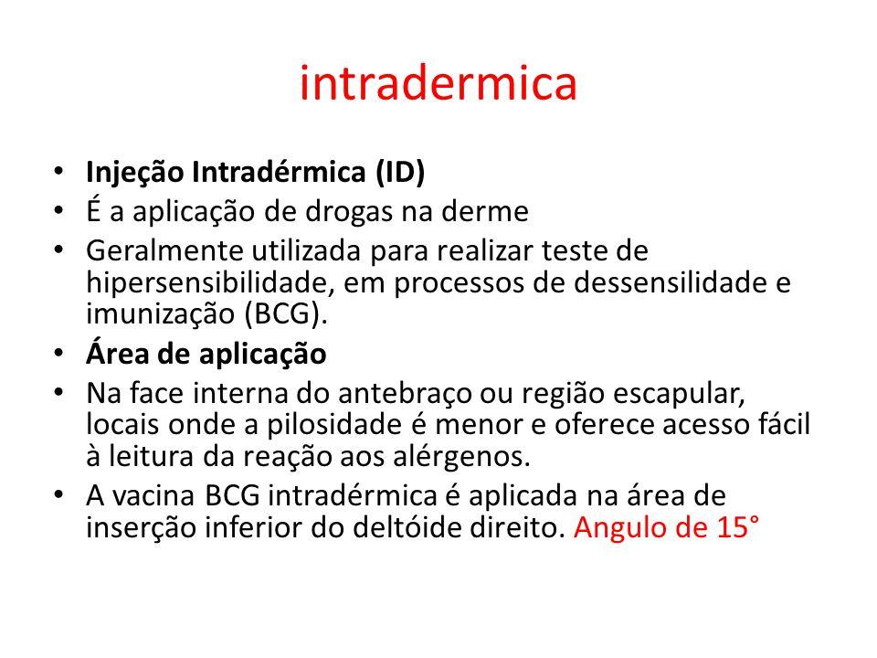 intradermica Injeção Intradérmica (ID)