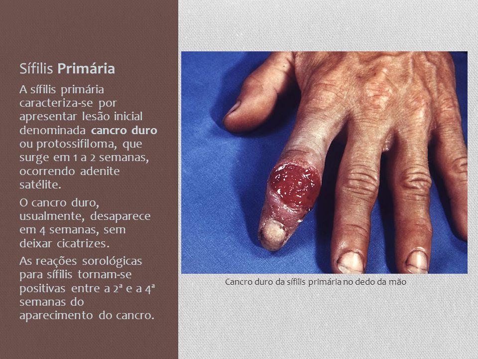 Sífilis Primária