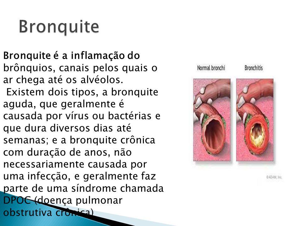 Bronquite Bronquite é a inflamação do brônquios, canais pelos quais o