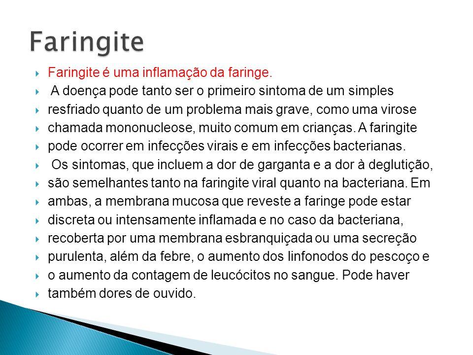 Faringite Faringite é uma inflamação da faringe.