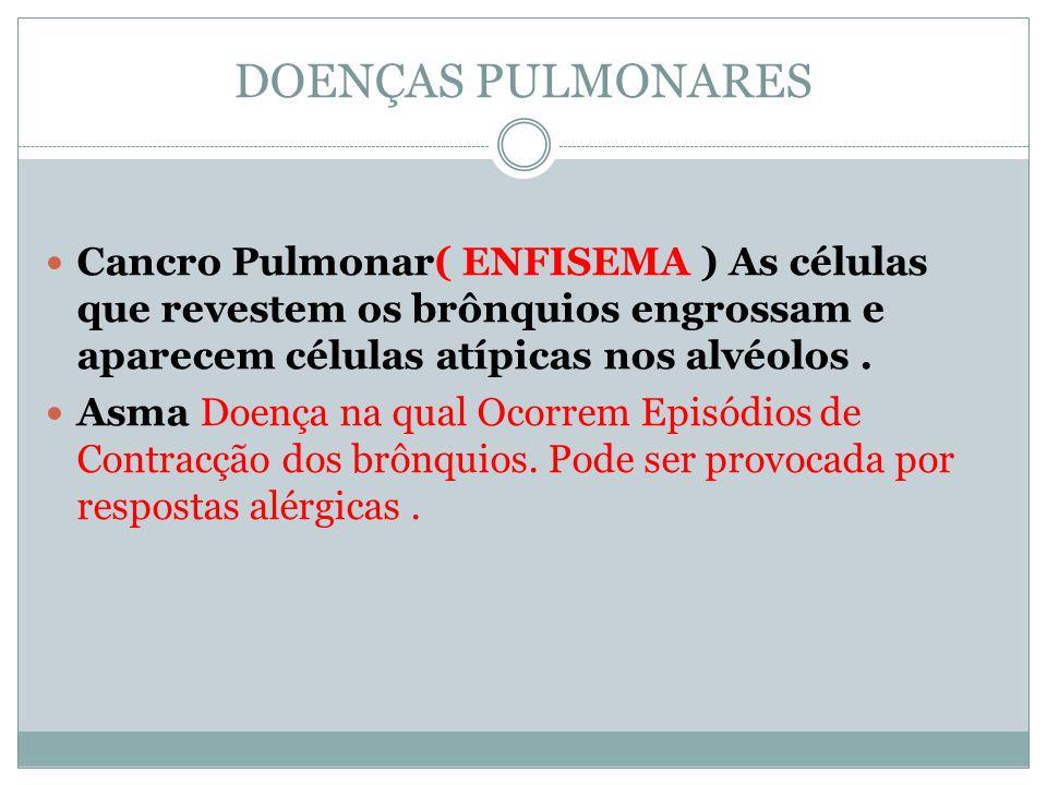 DOENÇAS PULMONARES Cancro Pulmonar( ENFISEMA ) As células que revestem os brônquios engrossam e aparecem células atípicas nos alvéolos .