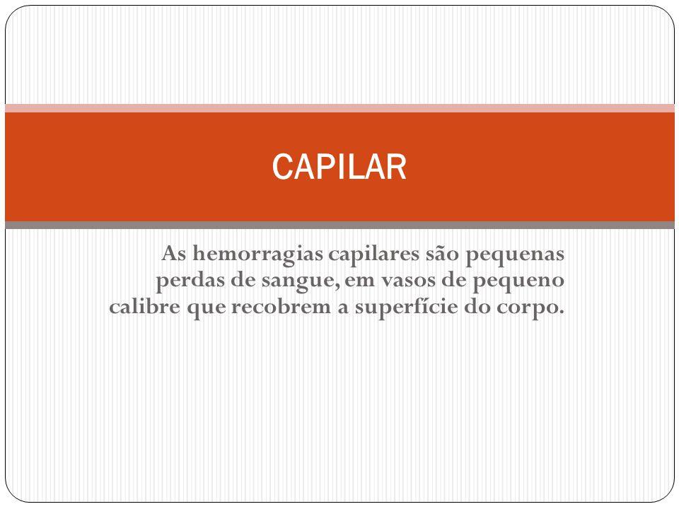 CAPILAR As hemorragias capilares são pequenas perdas de sangue, em vasos de pequeno calibre que recobrem a superfície do corpo.