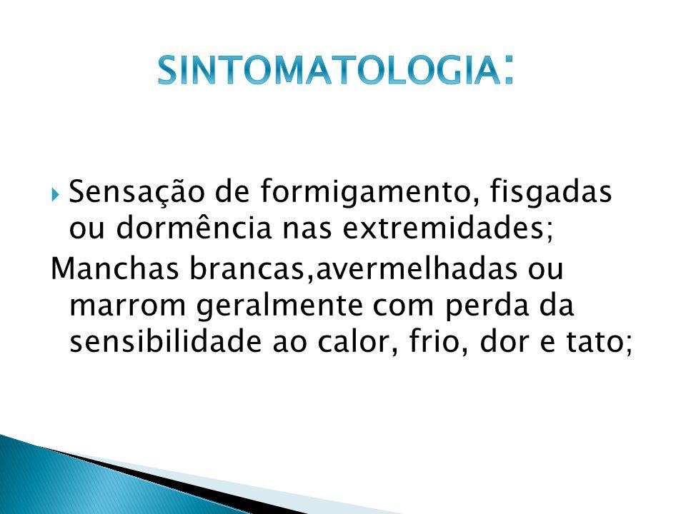 SINTOMATOLOGIA: Sensação de formigamento, fisgadas ou dormência nas extremidades;