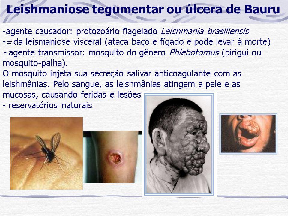 Leishmaniose tegumentar ou úlcera de Bauru