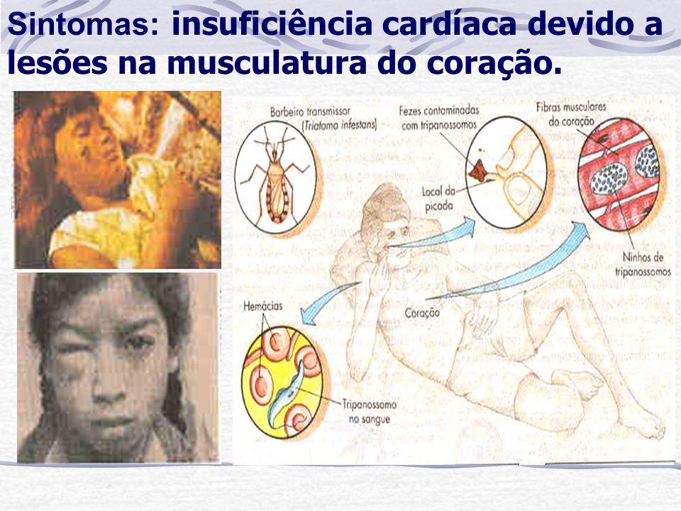 Sintomas: insuficiência cardíaca devido a lesões na musculatura do coração.