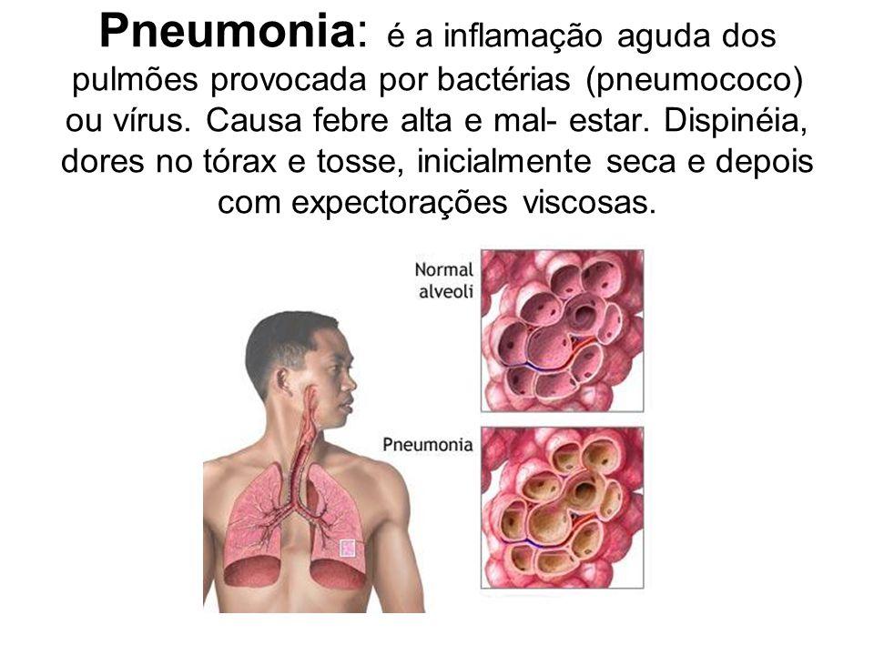 Pneumonia: é a inflamação aguda dos pulmões provocada por bactérias (pneumococo) ou vírus.