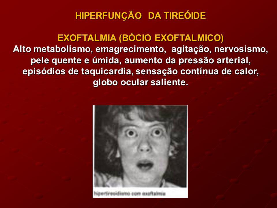 HIPERFUNÇÃO DA TIREÓIDE EXOFTALMIA (BÓCIO EXOFTALMICO)