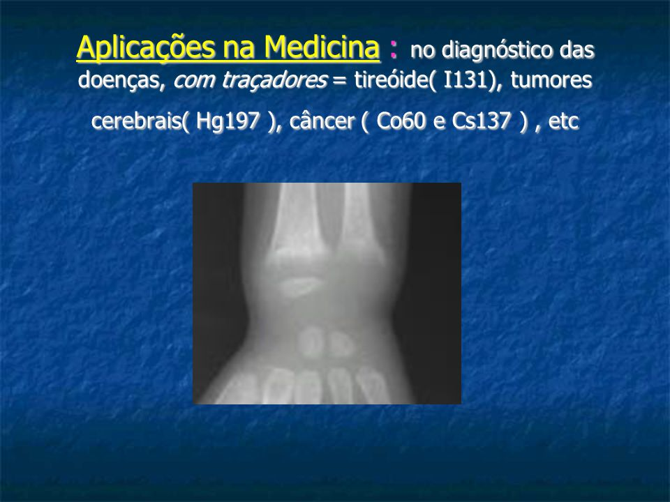 Aplicações na Medicina : no diagnóstico das doenças, com traçadores = tireóide( I131), tumores cerebrais( Hg197 ), câncer ( Co60 e Cs137 ) , etc