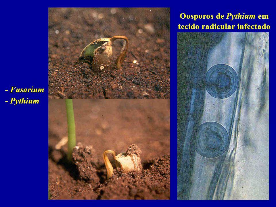 Oosporos de Pythium em tecido radicular infectado