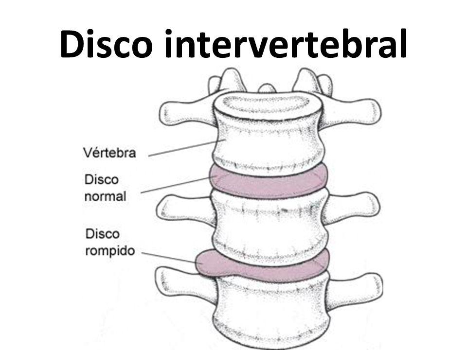 Disco intervertebral