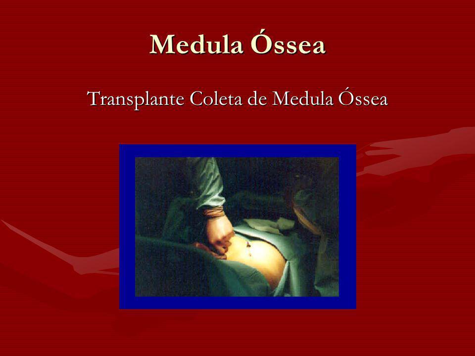 Transplante Coleta de Medula Óssea