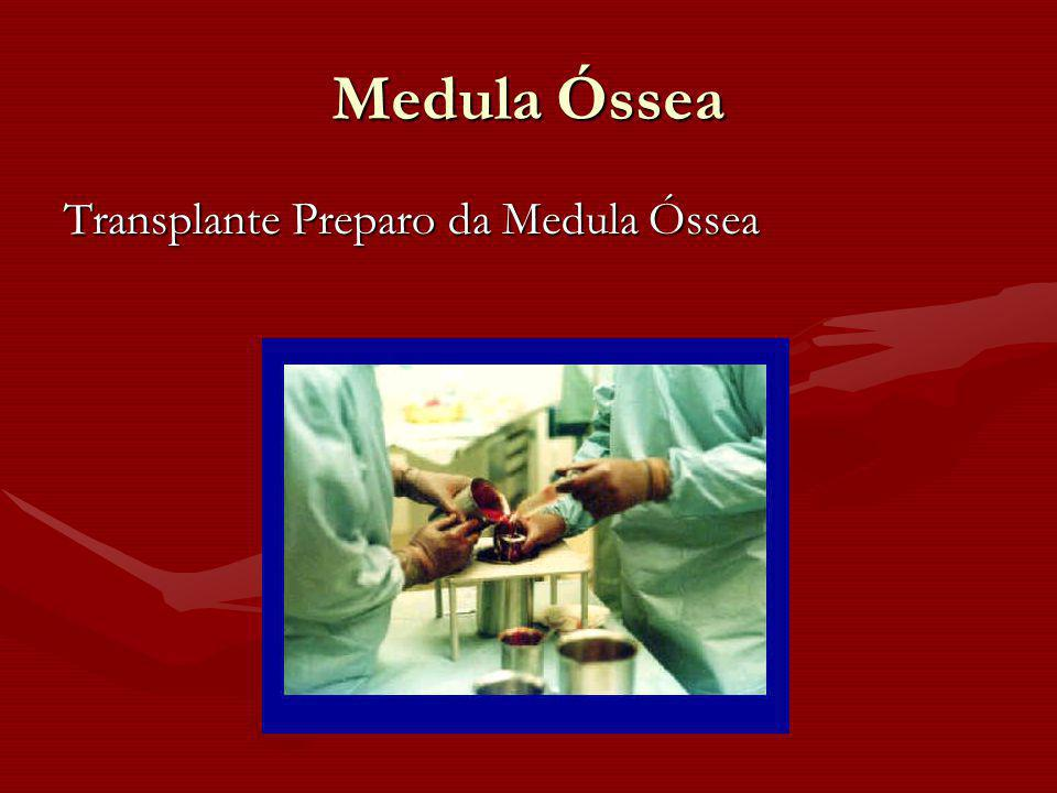 Medula Óssea Transplante Preparo da Medula Óssea