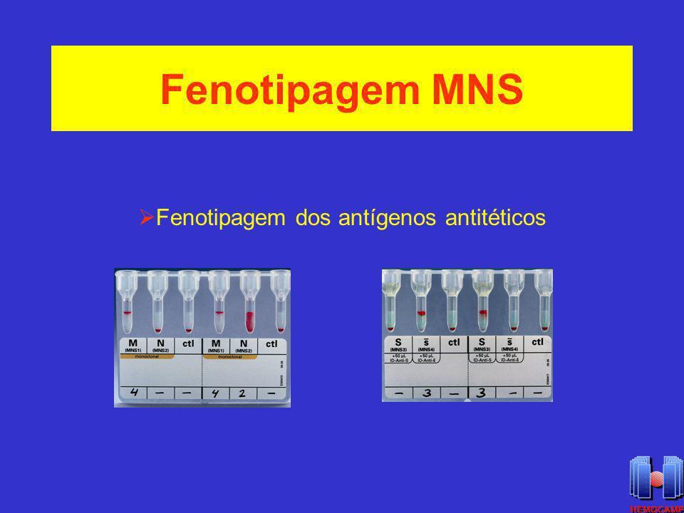 Fenotipagem MNS Fenotipagem dos antígenos antitéticos